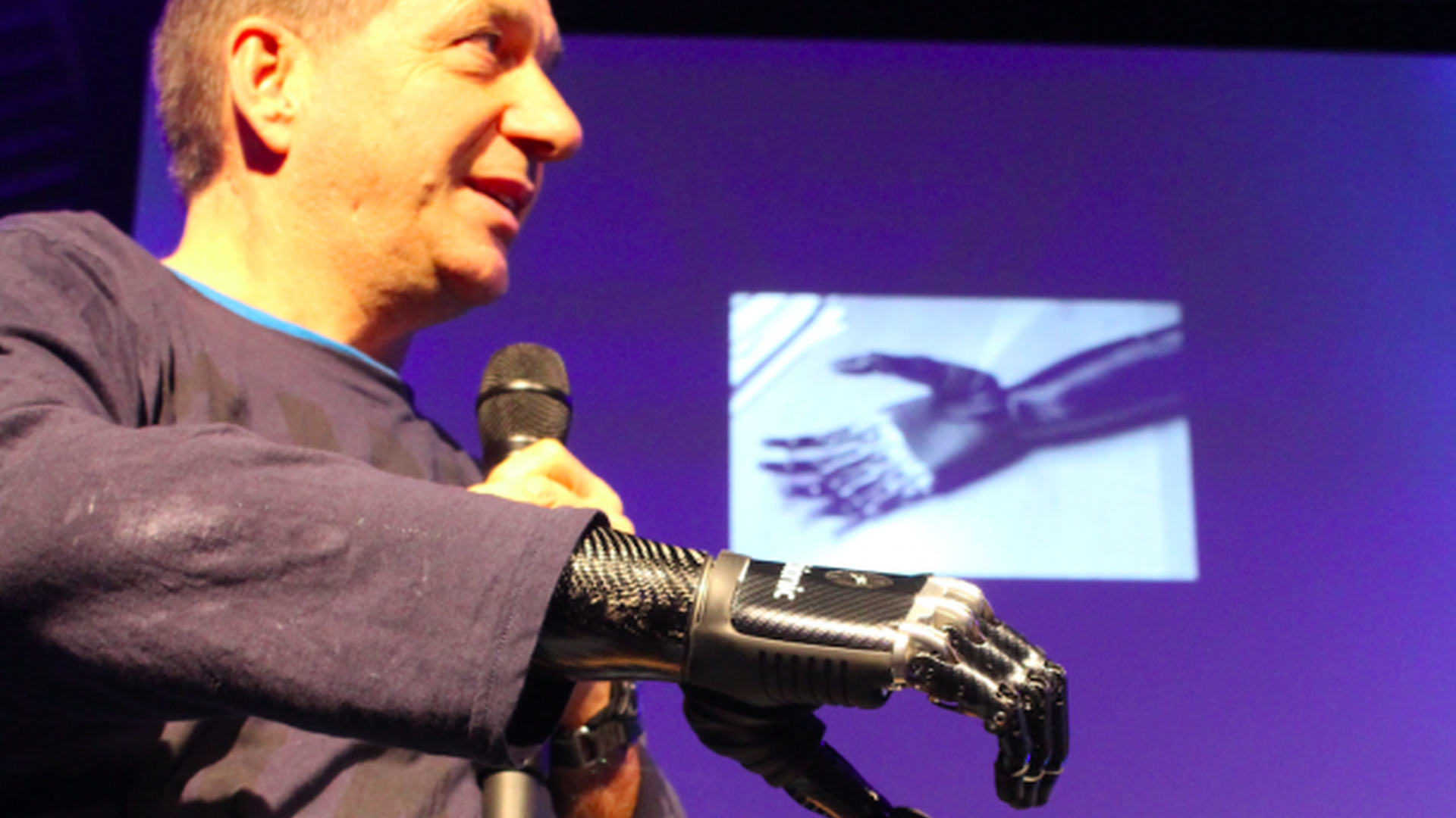 looking back at E52Live!: Arie Rommers and his bionic hand